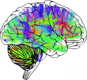 image of brain with neural pathways highlighted in different bold colors